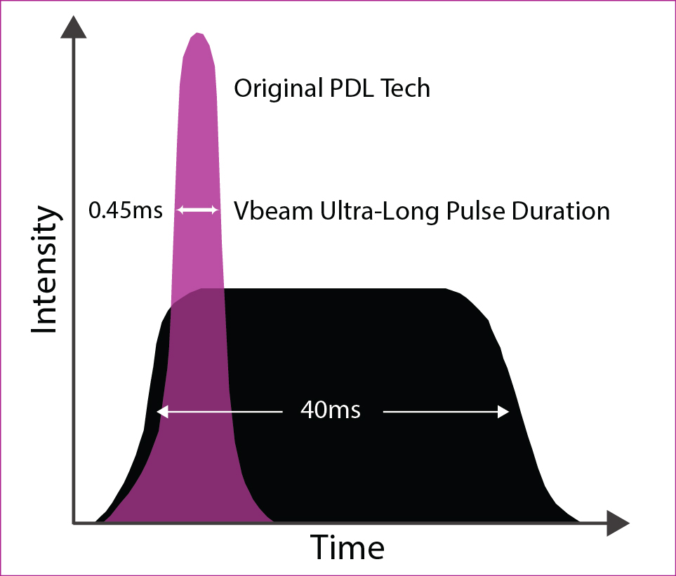 VBeam_Time_Pulses